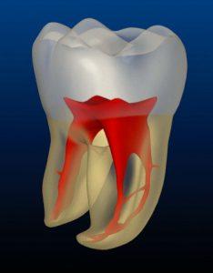 Problemas periodontais - perda do dente de tras